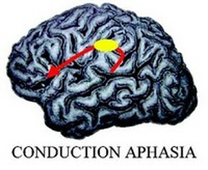 Conduction Aphasia - What is Conduction Aphasia?